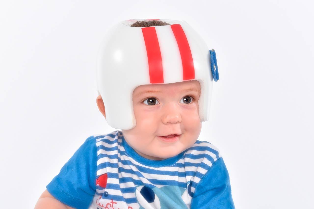 Sobre cascos pediátricos